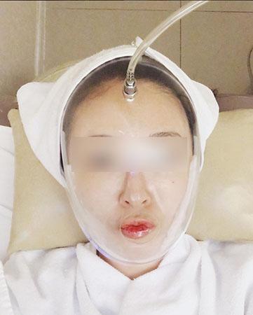 林二石整形外科皮肤护理中