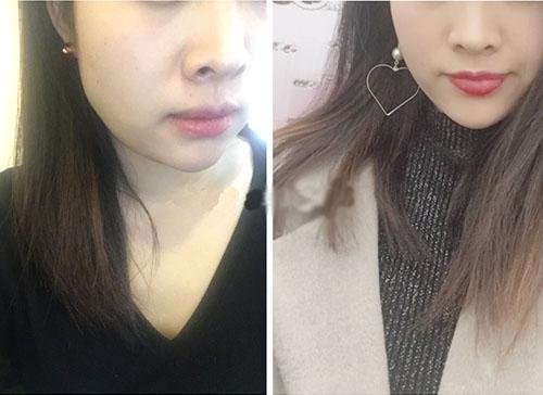 林二石肉毒素瘦脸案例对比