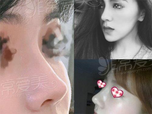 韩国华丽风鼻子照片图