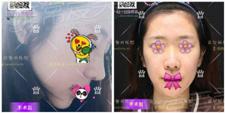 韩国丽丝塔隆鼻案例