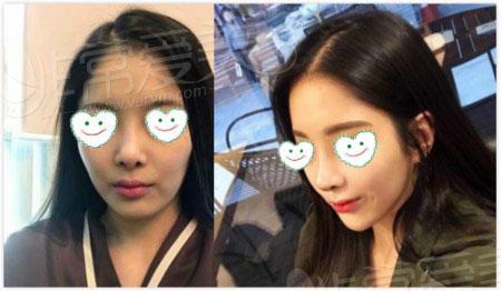 韩国丽丝塔华丽风鼻子案例照片