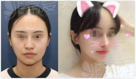韩国nano整形华丽风鼻子恢复照片
