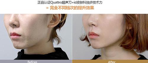 韩国ID整形外科·皮肤科超声刀术后效果