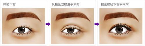 眼睑下垂只做双眼皮就万事大吉了?眼睑下垂矫正才是正途