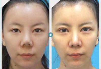 韩国江南三星整形医院朴英进鼻萎缩真人案例