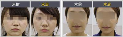 面部吸脂手术对比案例