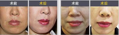 面部提升手术对比案例