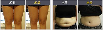 身体塑形手术对比案例