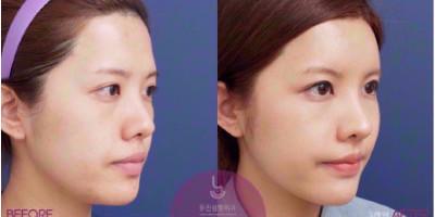 韩国友珍整形外科脂肪填充案例对比图