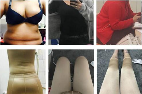 韩国劳波儿整形外科吸脂对比