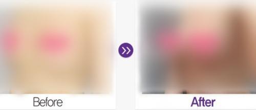 韩国GLAM整形外科假体隆胸真人案例
