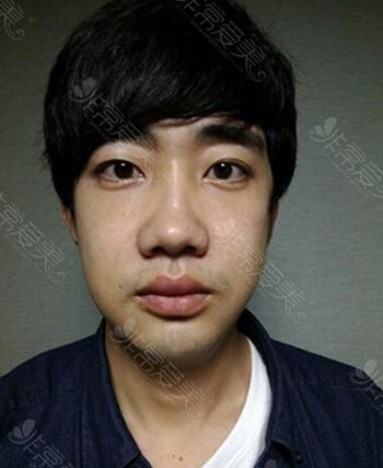 韩国GNG双鄂整形术后恢复期照片