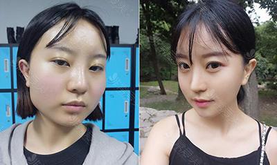 韩国GNG医院轮廓眼鼻整形前后图