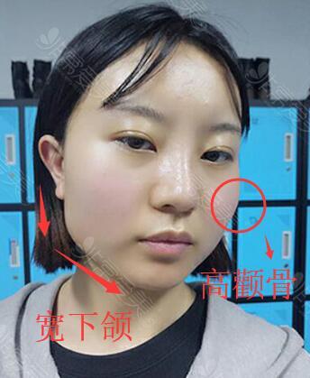 面部颧骨突出下颌角过大照片