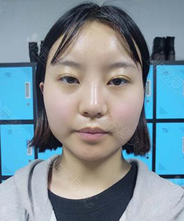 韩国GNG轮廓整形术前照