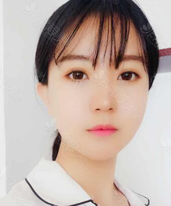 韩国gng整形医院轮廓术后2个月照片