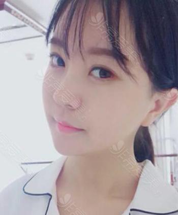 韩国gng整形医院轮廓术后照片