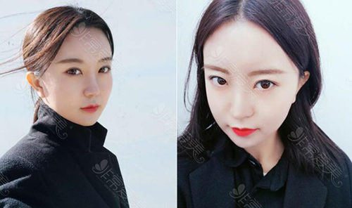 韩国gng整形外科眼鼻轮廓整形术后照片