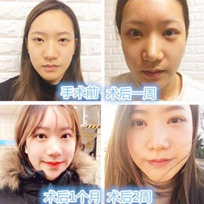韓國BK整形外科官網整形案例