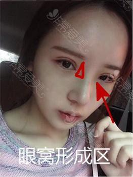 韓國隆鼻術后效果