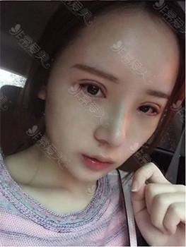 韓國鼻整形效果圖示