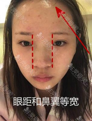 韓國鼻綜合案例分析對比