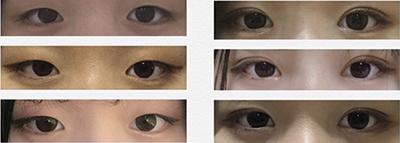 韩国乐于丽颜医院眼部整形