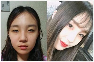 韩国乐于丽颜眼综合对比