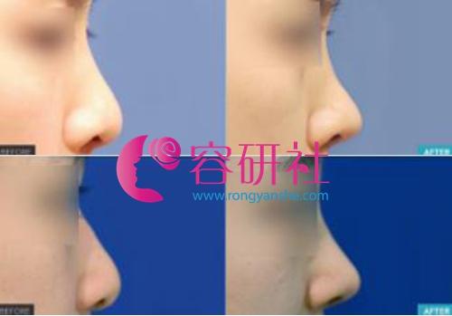 profile普罗菲耳整形医院做鼻修复贵吗?需要多少钱?