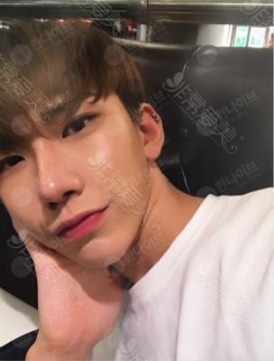 韩国男士整形好么?