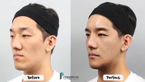 韩国普罗菲耳面部综合整形照片