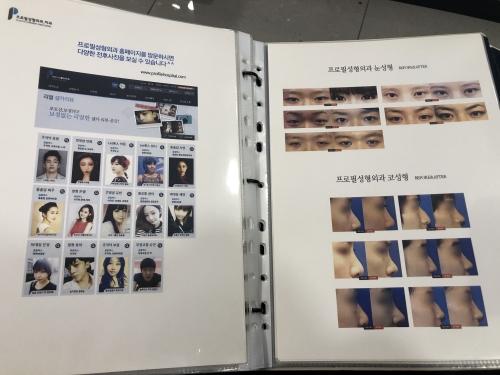 韩国普罗菲耳整形外科案例图