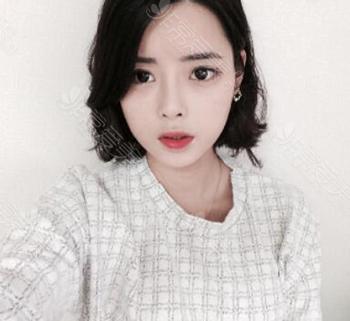 韩国ID整形医院眼鼻整形术后照片
