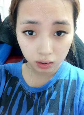韩国ID整形医院眼鼻整形术前照片