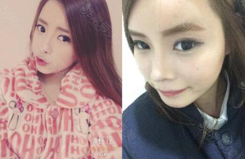 韩国ID整形医院眼鼻整形术后2个月照片