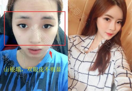 韩国ID整形医院眼鼻整形前后对比照片