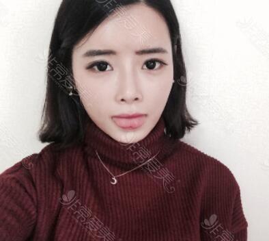 韩国ID整形医院眼鼻整形术后效果