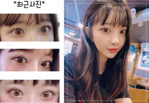 韩国纯真崔宰愿萌动初恋眼术后照片