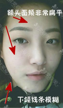 韩国双眼皮手术怎么做
