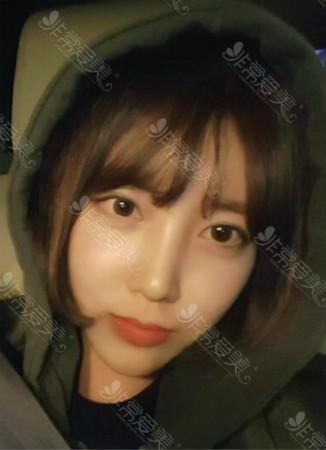 去韩国做双眼皮手术值得么