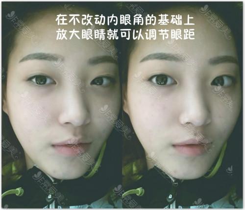 韩国眼部整形案例对比