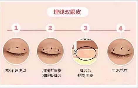 韩国纯真整形双眼皮修复