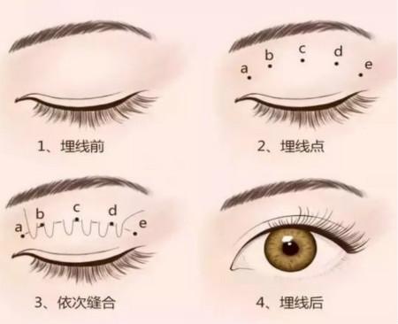 韩国双眼皮手术特色