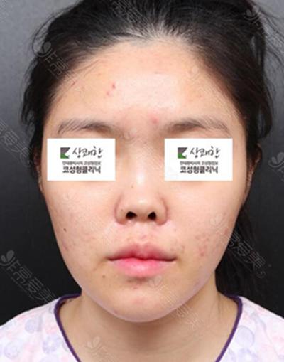 韩国清新整形外科鼻修复术前照片