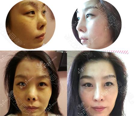 韩国4月31日整形外科挛缩鼻矫正照片
