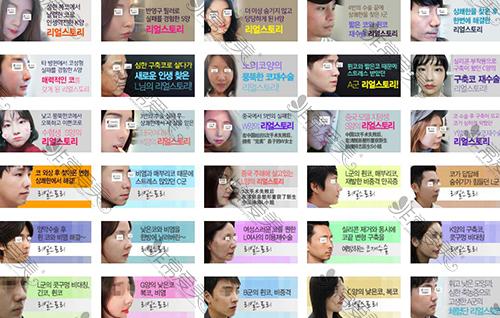 韩国清新整形鼻整形案例图