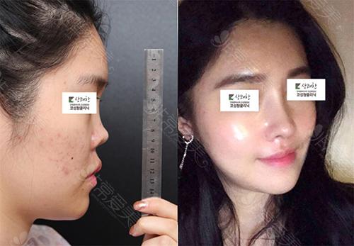 韩国清新整形外科挛缩鼻矫正照片