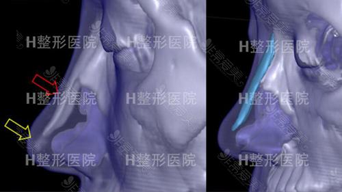 韩国H整形鼻修复术前照片