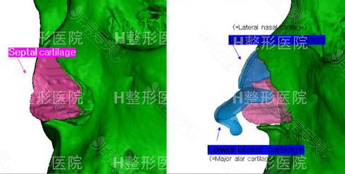 韩国H整形鼻修复3D模拟术后照片
