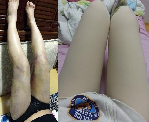 韩国医院大腿吸脂案例对比